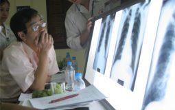 Công nhân sản xuất tấm lợp dễ bị bệnh bụi phổi Amiăng?