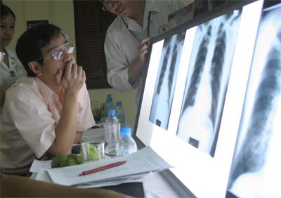 Các nhà chuyên môn đã xem xét kỹ phim chụp phổi của công nhân và không phát hiện tổn thương phổi do bụi amiăng (Ảnh: L.N)